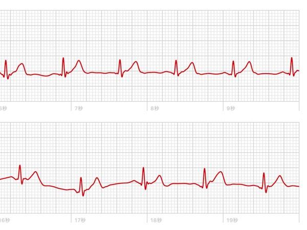 Apple Watchで計測した心電図データ